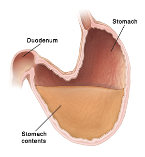 Cross section of stomach and duodenum. Stomach is large and sagging. Stomach contents in sagging part cannot move properly out of stomach to duodenum.